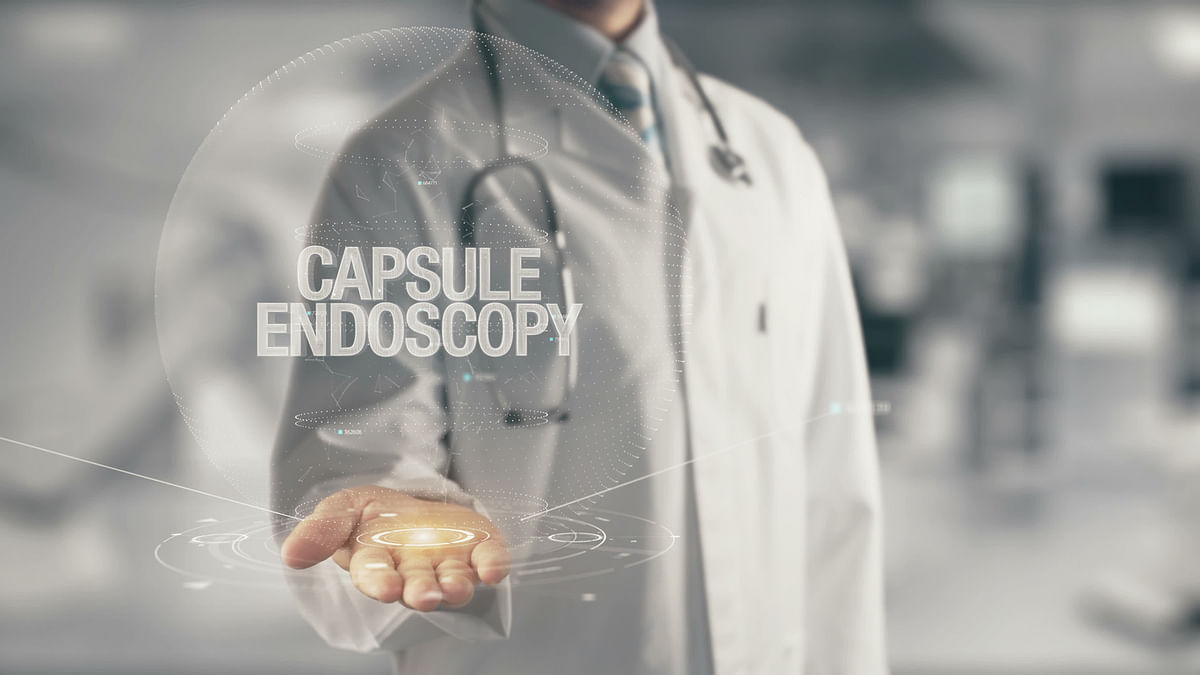 Capsule endoscopy is a procedure that uses a tiny wireless camera to take pictures of the digestive tract.