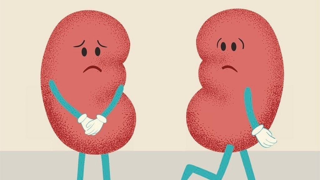 How Well Do You Know Your Kidneys?