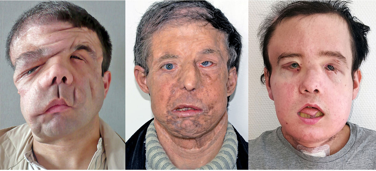 In January 2018, when a second face donor for Hamon became available, Lantieri and his team performed a second face transplant.