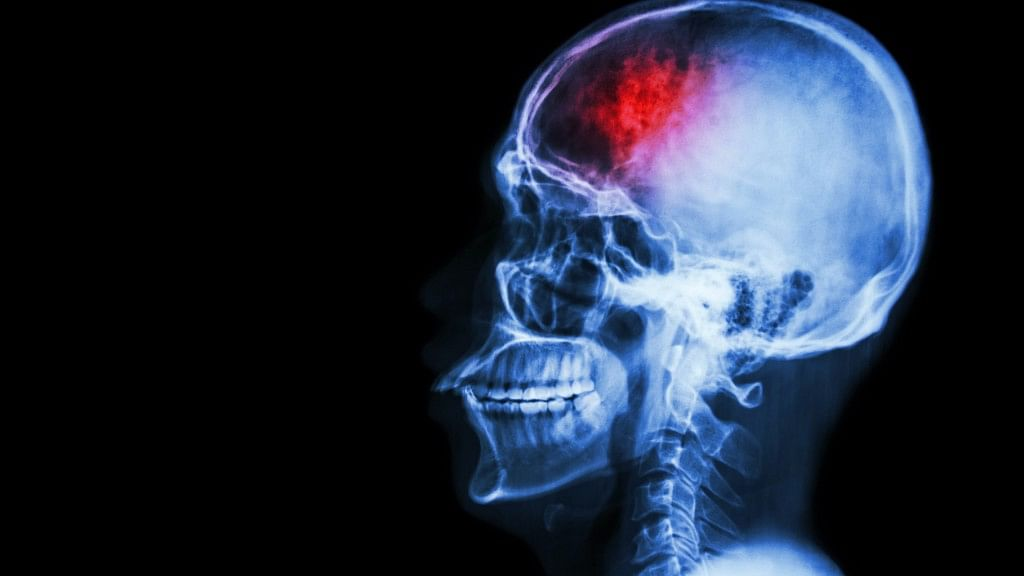 Stroke FAQs: A Doctor and a Survivor Talk Causes and Treatment