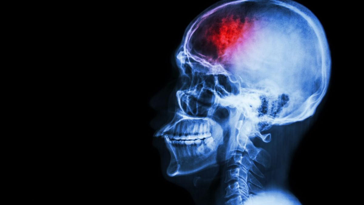 COVID Attack on Brain, Not Lungs, Causes Severe Disease in Mice