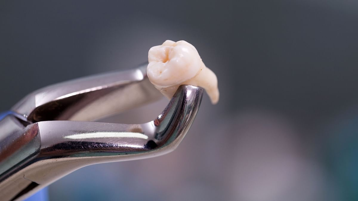 Doctors have extracted an astounding 526 teeth from the mouth of a seven-year-old boy.