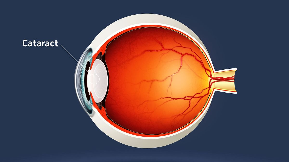 Timely Cataract Surgery to Increase Road Safety: New Study
