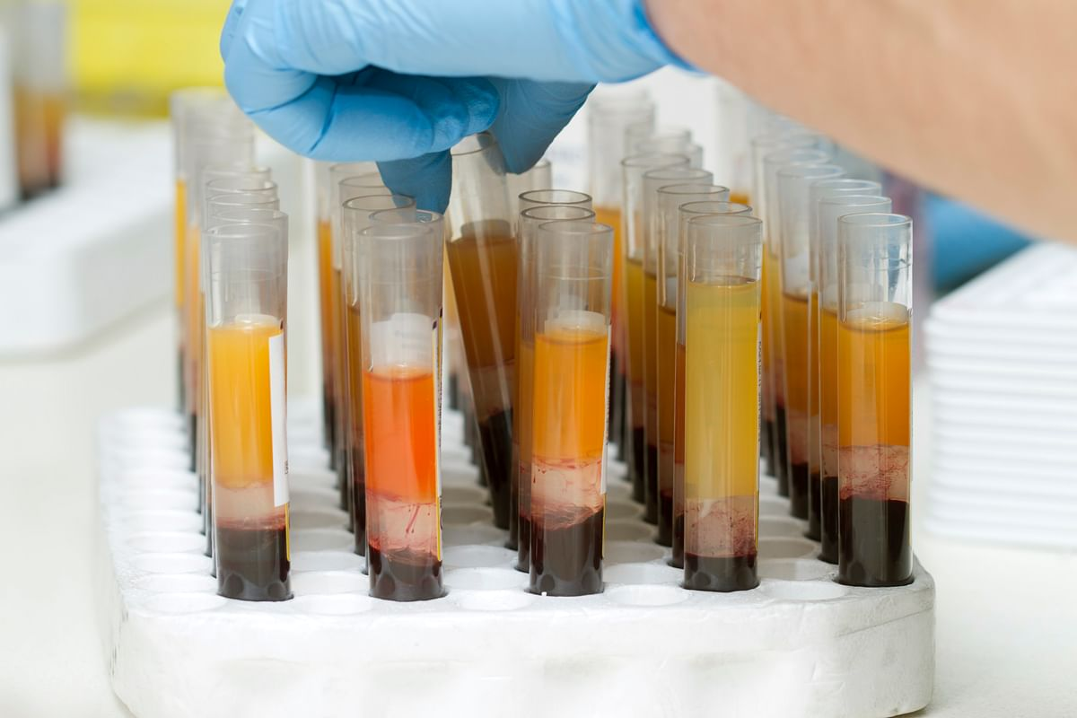 An interim analysis of a trial on convalescent plasma therapy at AIIMS has found that it does not reduce death risk in COVID-19 patients.