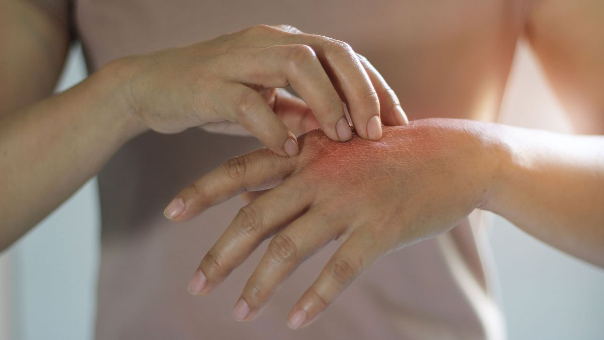 Skin Rashes  Also a Symptom of COVID-19, Finds Study