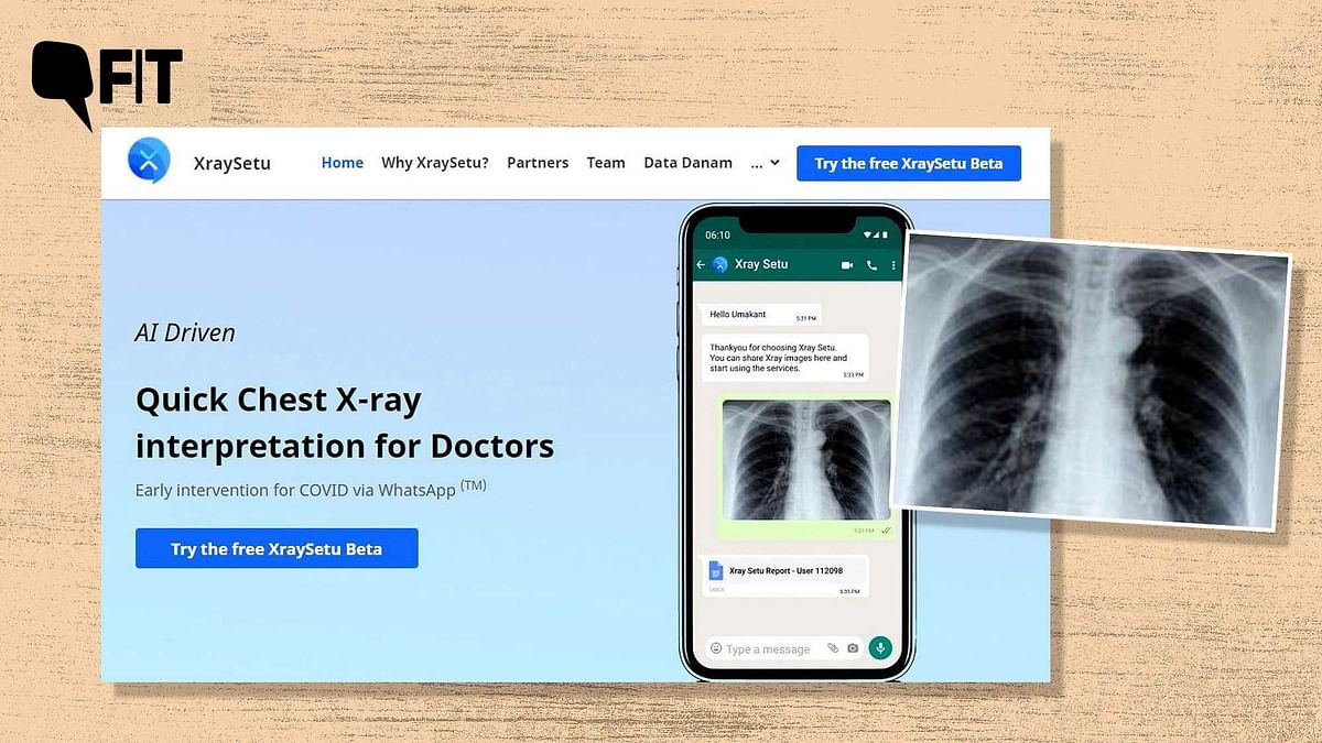 """<div class=""""paragraphs""""><p>Can Xray Setu help doctors detect COVID-19 infection in rural areas?</p></div>"""